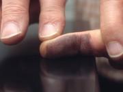 Polizei Fingerabdruck